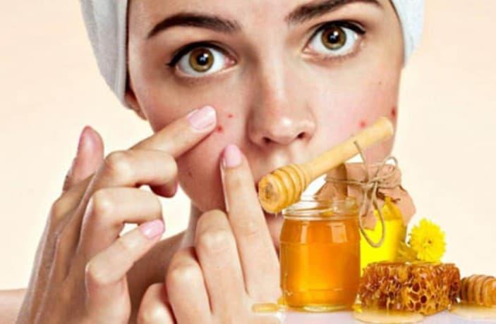 Cách trị mụn bọc với mật ong