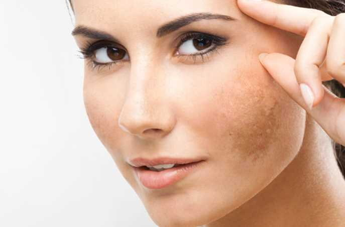 Hướng dẫn 7 cách làm trắng da mặt tại nhà nhanh nhất cho nữ