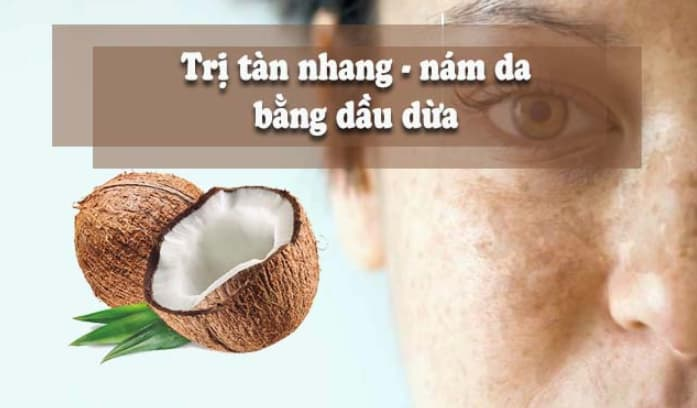 """Dầu dừa- """"đánh bay"""" nám và tàn nhang"""