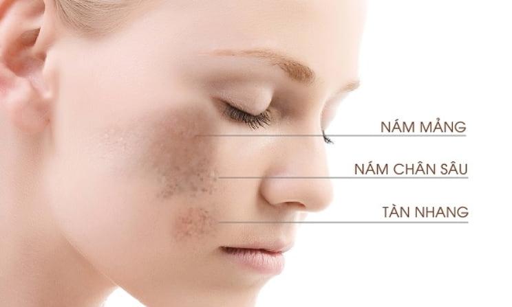 Làn da và tình trạng nám