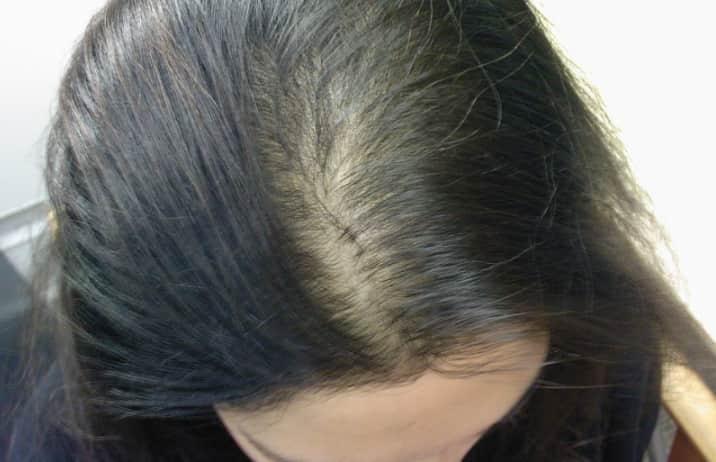 Mái tóc mỏng và dễ rụng