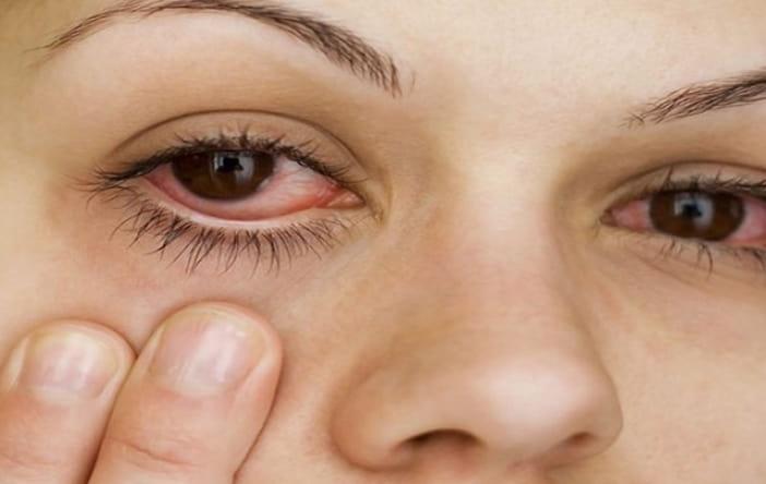Dầu dừa chảy vào mắt