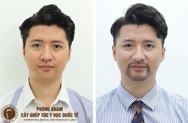 Vì sao Trọng Hưng lại cấy râu?