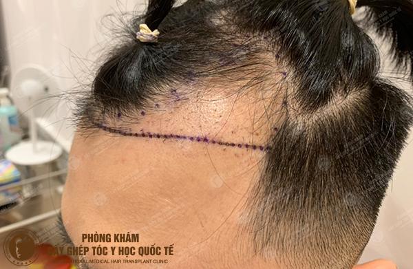 Phục hồi hậu quả sau 2 lần cấy tóc hỏng của hotboy Đặng Thiên Anh