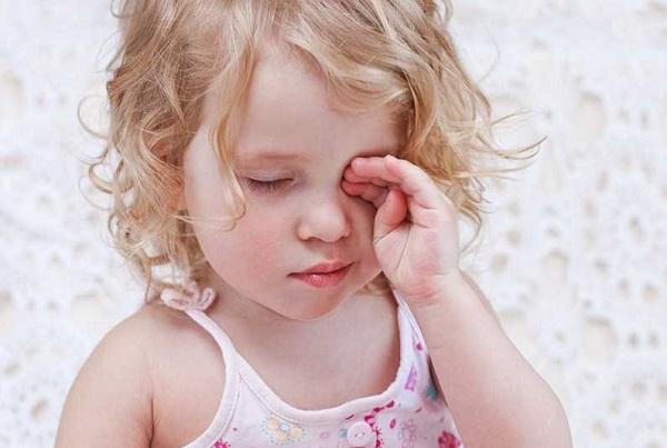 Viêm bờ mi mắt ở trẻ em: Triệu chứng, nguyên nhân và cách điều trị hiệu quả