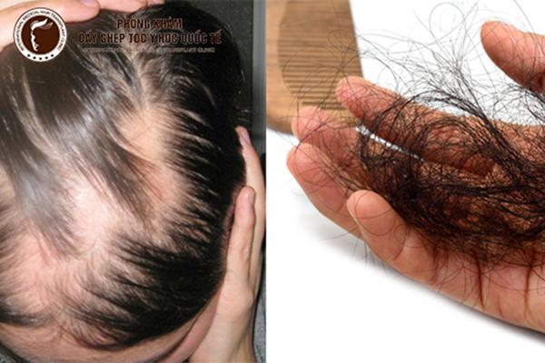 nguyên nhân rụng tóc quá nhiều