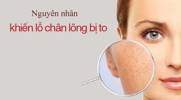 Nguyên nhân gây nên lỗ chân lông to