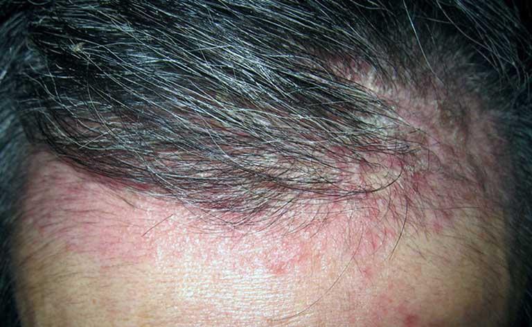 Bệnh Viêm Da Đầu
