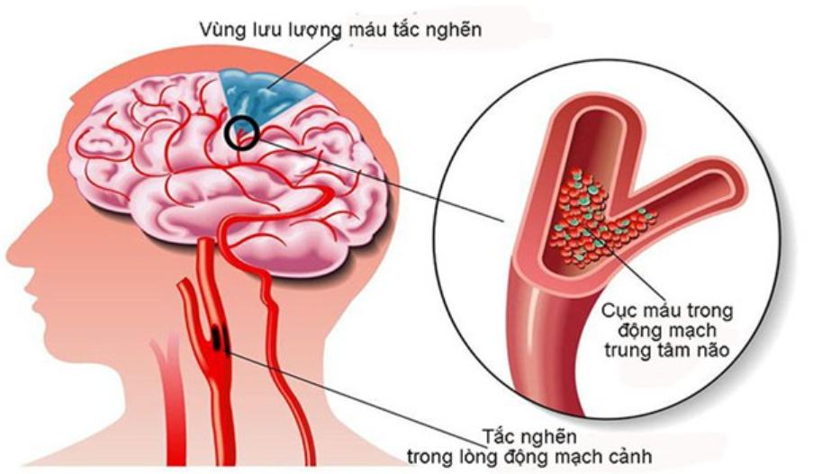 Hoạt Huyết Hưỡng Não