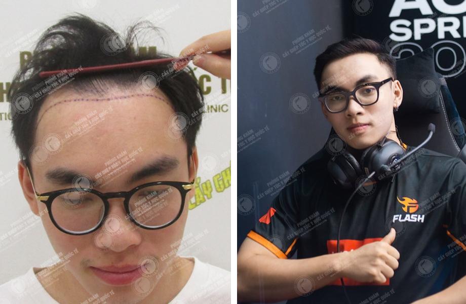 Công Nghệ Cấy Tóc