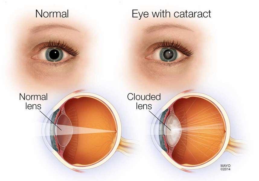 Bệnh Mù Mắt